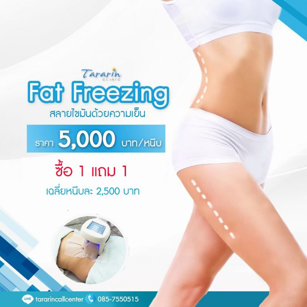 Fat Freezing 1 แถม 1 สลายไขมัน ง่าย ๆ ไม่ต้องผ่าตัด