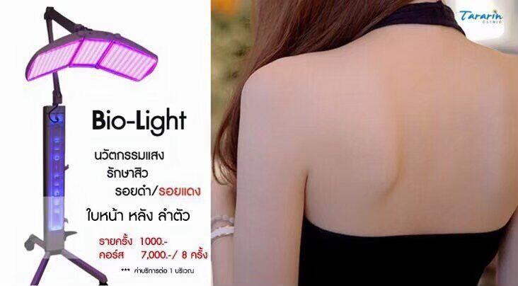 รักษาสิว ด้วยแสง Bio Light
